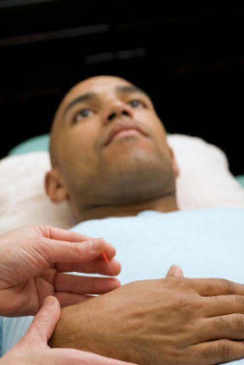 Best Places For Acupuncture In Atlanta