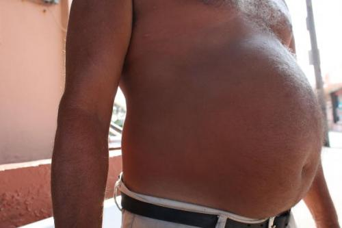 Study: World Obesity Triples Since 1980, Nearly 1.5 Billion People Overweight